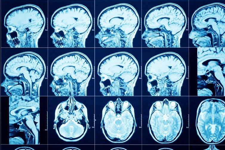 Coronavirus: Many Patients Reporting Neurological Symptoms
